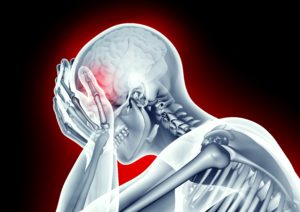 brain injury Adobestock x-ray image human head with pain
